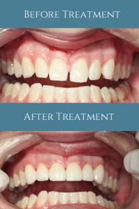 North Shore Dental Group - Closing Diastema with Porcelain Veneers