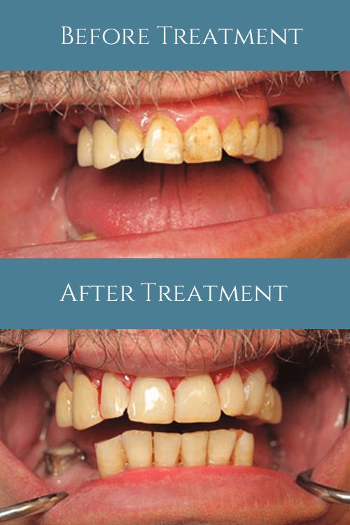 North Shore Dental Group - Composite Bonding