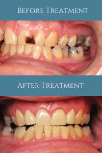 North Shore Dental Group - Porcelain Crown