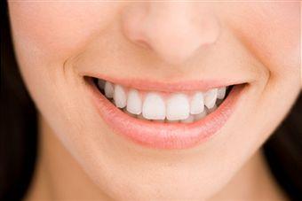 Dental Lumineer (Veneers)