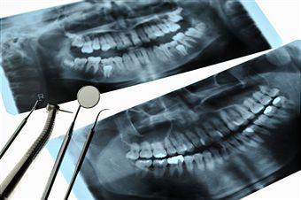 X-Ray Myths And Your Dental Health
