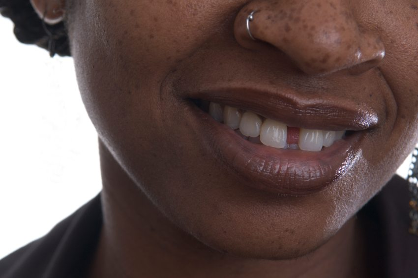 woman with gap in teeth smiling