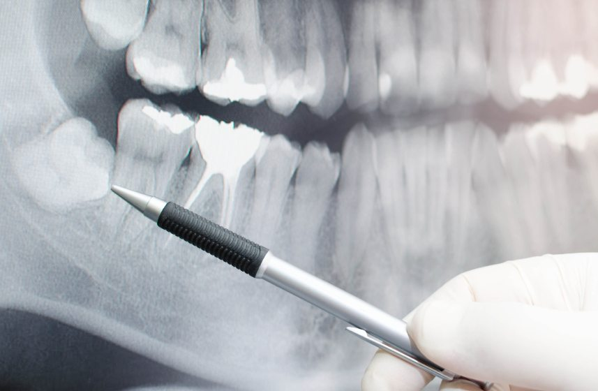 What Is the Difference between a Dental Filling and a Dental Sealant?
